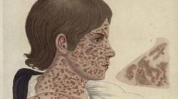 Quá trình gian nan loại trừ bệnh sởi ở Mỹ