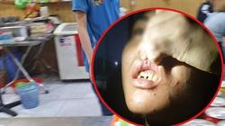 Video: Khủng khiếp cảnh cậu bé giúp việc quán bánh xèo ở Bắc Ninh bị chủ tra tấn bằng chầy sắt, bàn chông đinh