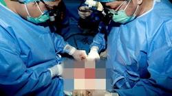Hành trình đặc biệt đưa quả tim vượt hơn 1.000km về Huế ghép cho bệnh nhân