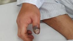 Rắn hổ mang cắn hoại tử ngón tay, ca nhập viện vì rắn cắn tăng mạnh