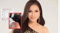 Ca sĩ Hồng Ngọc để lộ vết bỏng lớn ở chân khiến con gái rơi nước mắt, dàn sao Việt xót xa