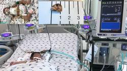 Cứu sống bé 2 tháng tuổi bị tràn mủ màng tim, màng phổi vì khuẩn tụ cầu vàng