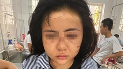 Cô gái bị hành hung suốt 2 giờ tại Yên Bái: Công an nói gì?