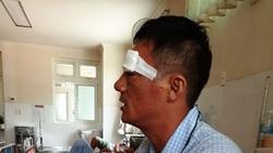 Nổ súng ở bến xe Quy Nhơn: Truy bắt nghi phạm cắt tóc ngắn, bịt khẩu trang