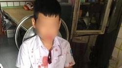 Hòa Bình: Cháu bé 7 buổi bị bố bạn đánh nhập viện, nhà trường nói gì?