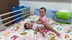 Những hình ảnh đầu tiên của ca phẫu thuật tách hai bé gái song sinh