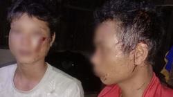 Đắk Lắk: Xác minh thông tin 3 thanh niên bị đánh nhập viện
