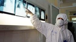 Thêm 21 ca Covid-19 mới, Bộ Y tế thành lập 5 đoàn kiểm tra công tác phòng chống dịch
