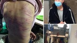 Nóng trong tuần: Bé gái 12 tuổi bị bạo hành, xâm hại và lời thú tội rùng mình của mẹ ruột cùng người tình