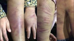 """Lãnh đạo Hà Nội """"hỏa tốc"""" yêu cầu xác minh, xử lý vụ bé gái 12 tuổi bị mẹ đẻ và người tình bạo hành"""