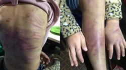 """Từ vụ bé gái 12 tuổi ở Hà Nội bị xâm hại: """"Lỗ hổng"""" pháp lý trong việc bảo vệ trẻ em"""
