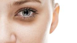 Tóc bạc, nám da, mắt thâm cảnh báo sức khỏe lá gan
