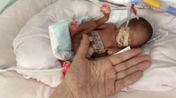 Kỳ tích sống sót của em bé sinh non nặng vỏn vẹn 450 gam, bé như bàn tay