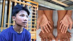 Cậu bé nghèo có 26 ngón chân tay ở Quảng Trị và ước mơ được phẫu thuật