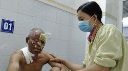Hà Tĩnh: Chồng u não ngã vào bếp lửa bị bỏng nặng, vợ đưa vào viện trong tay chỉ có 1 triệu đồng