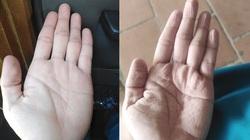 """Những đôi bàn tay """"biến dạng"""" tại tâm dịch Covid-19"""