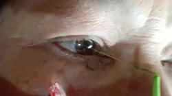 Clip: Kinh hoàng bác sĩ kéo ra từ trong mắt bệnh nhân hàng chục con sán ký sinh