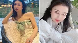 Hot girl Trung Quốc tử vong sau khi trải qua ba ca phẫu thuật thẩm mỹ một ngày