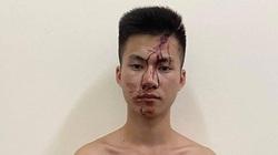 Thái Nguyên: Mâu thuẫn lúc chơi bida, thanh niên 18 tuổi đâm 1 người tử vong