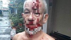 """TP.HCM: Thực hư """"người đàn ông thắc mắc tiền trợ cấp, bị ném gạch vào đầu"""" ở quận Tân Phú"""
