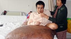 Phẫu thuật cho bệnh nhân có khối u 90kg