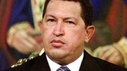 Sức khỏe Tổng thống Venezuela khá phức tạp