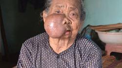 Cụ bà 86 tuổi gần một thập kỷ vác khối u khổng lồ trên mặt