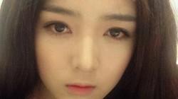 """Hot girl viêm mắt nặng vì """"mê"""" kính áp tròng"""