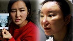 3 cô gái Trung Quốc nhan sắc tàn tạ hậu dao kéo