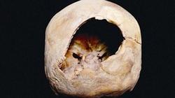 Phẫu thuật não có thể đã diễn ra cách đây 3.000 năm