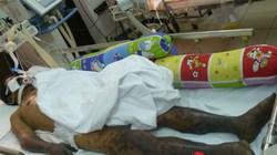 Bệnh liên cầu lợn gia tăng dịp Tết: Nguy hiểm khi ăn tiết canh