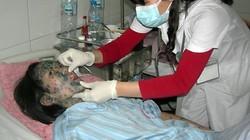 Dấu hiệu và cách chăm sóc bệnh nhân bị thủy đậu