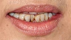 Răng hỏng gây hại đến cơ thể như thế nào?