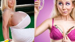 5 sự thật về biến chứng nổ ngực bơm đáng sợ