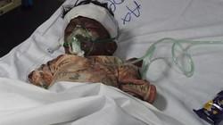 29 trẻ em thiệt mạng sau vụ đánh bom man rợ ở Parkistan