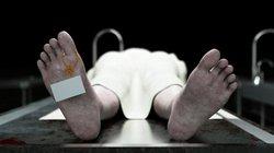 Não người vẫn còn sống 10 phút sau khi cơ thể chết
