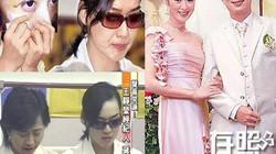 """""""Minh tinh đẹp nhất Hong Kong"""" kết hôn 9 tháng bị bạo hành 7 lần"""