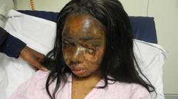 Nỗi đau tột cùng của thiếu nữ bị bạn thân tạt axit vì quá đẹp