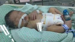 Sức sống mãnh liệt của thai nhi nghi bị mẹ đặt thuốc để ép sinh non