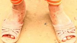 Sơn La: Nhói lòng nhìn trẻ vùng cao chân trần rớm máu vì giá lạnh