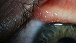 Gắp 14 con sán còn sống nguyên trong mắt cô gái Mỹ