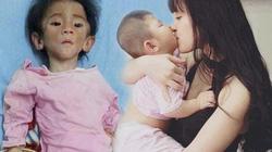"""Cô gái nhận nuôi em bé suy dinh dưỡng: """"Lấy chồng vẫn đưa con theo"""""""