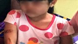 Mẹ ruột muốn đòi quyền nuôi bé gái nghi bị bạo hành ở Kiên Giang