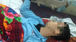Nam thanh niên bị đánh gục ngay trước cổng trụ sở Công an tỉnh Thái Bình