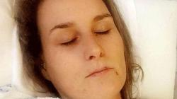 """Uống thuốc tránh thai, người phụ nữ phải nhập viện vì """"người phủ đầy vảy"""""""