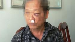 Xác định 2 đối tượng hành hung dã man phóng viên Đài Truyền hình VN