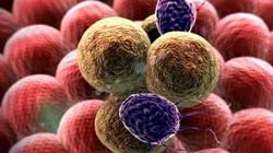 Muốn tránh mặt ung thư đại trực tràng cả đời, nhất định phải biết những điều này