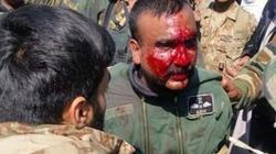 Ấn Độ-Pakistan đấu pháo dữ dội, dân thường và binh sĩ thiệt mạng