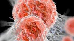 Dù hoàn toàn khỏe mạnh vẫn cần cảnh giác ung thư đại trực tràng khi có 6 dấu hiệu sau