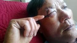 """TT-Huế: Thêm người dân bị """"cát tặc"""" đánh trọng thương, nguy cơ hỏng mắt"""